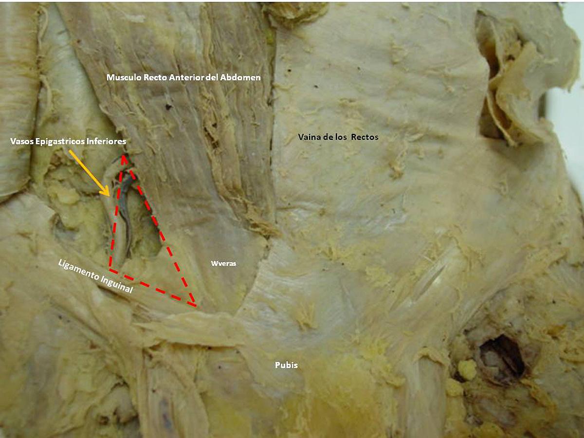 Triangulo de Hesselbach / Hesselbach\'s Triangle | Anatomía Fenestra