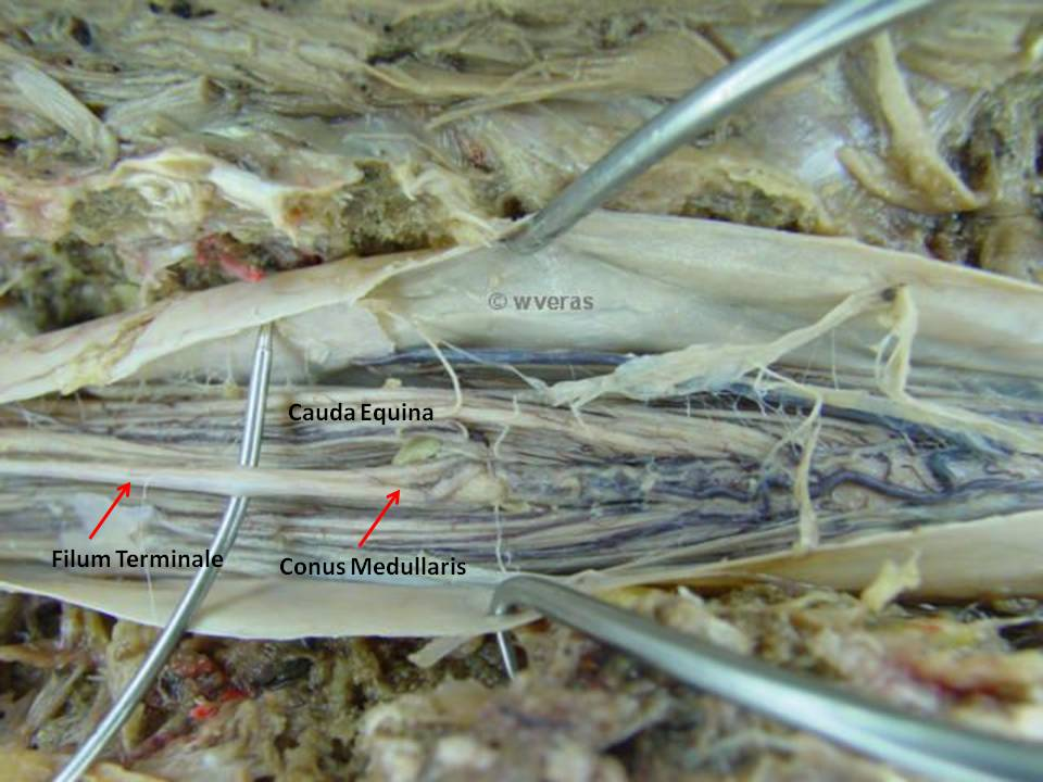 Filum Terminale Medula Espinal | Anatomía Fenestra