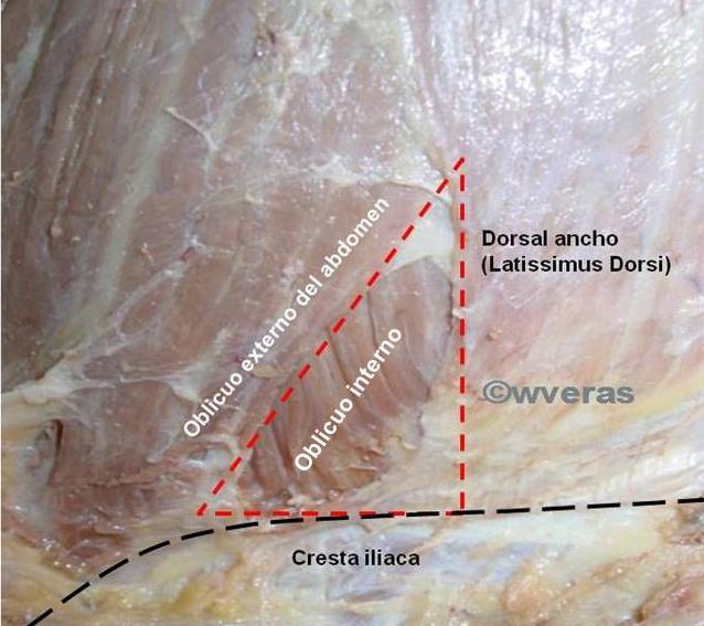 Triangulo Lumbar / Triangulo de J. L. Petit | Anatomía Fenestra