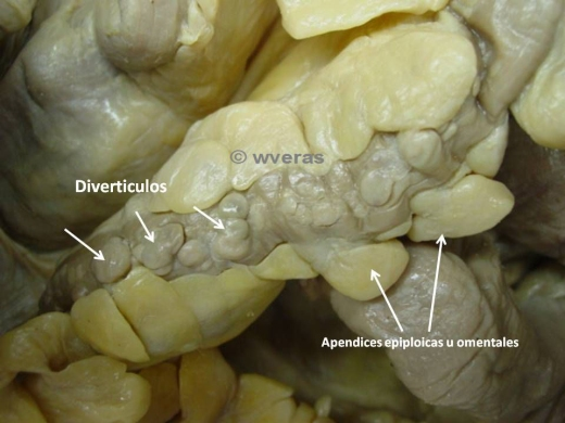 Diverticulosis de Colon