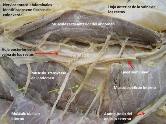 Nervios de la Pared Abdominal