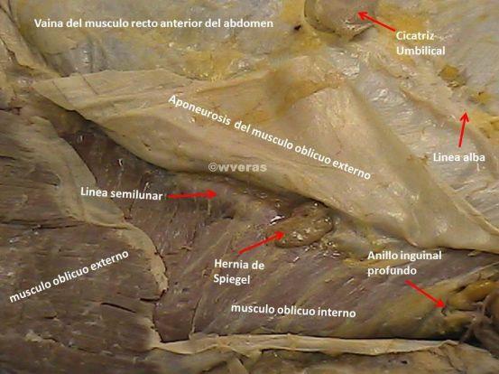 Pared abdominal y Hernia de Spiegel | Anatomía Fenestra