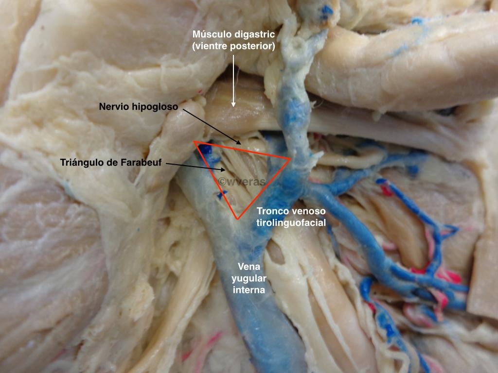 Triangulo de Farabeuf | Anatomía Fenestra